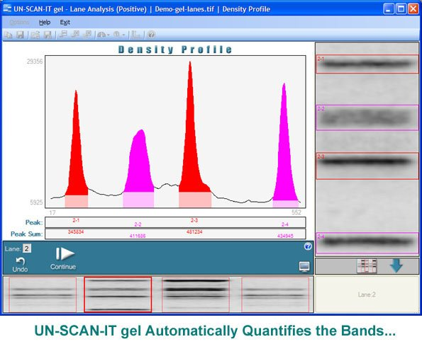 Quantify the Gel Bands